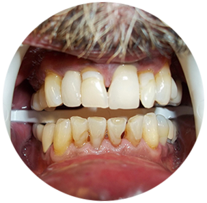 PreOP-Lower-Anterior-crown-1